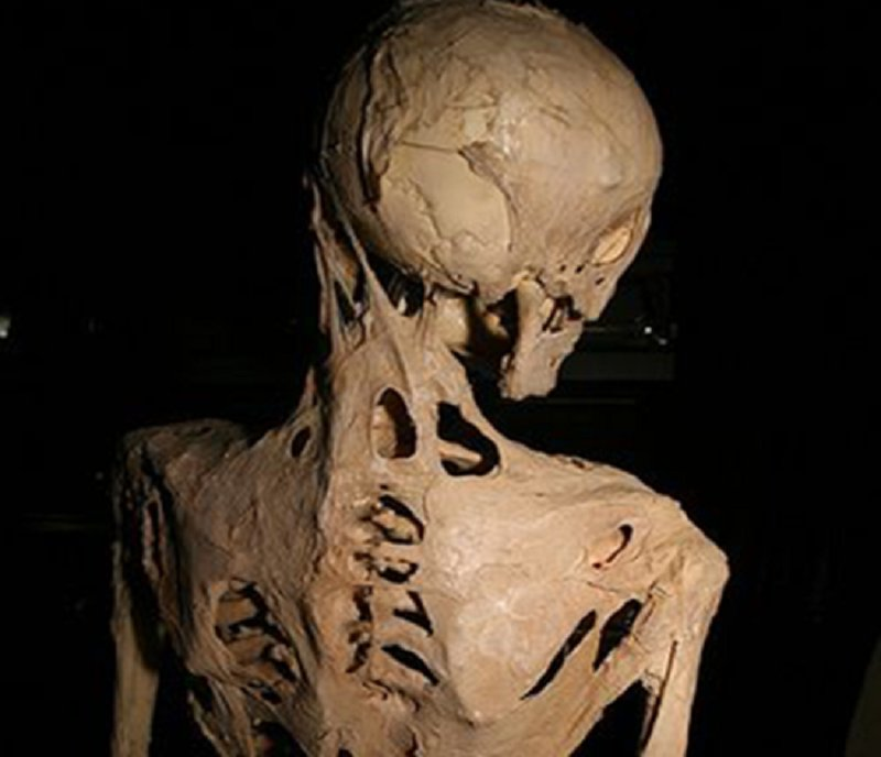 fibrodysplasia ossificans progressiva soft connective tissue Fibrodysplasia ossificans progressiva (fop) is a disorder in which skeletal muscle and connective tissue, such as tendons and ligaments, are gradually.