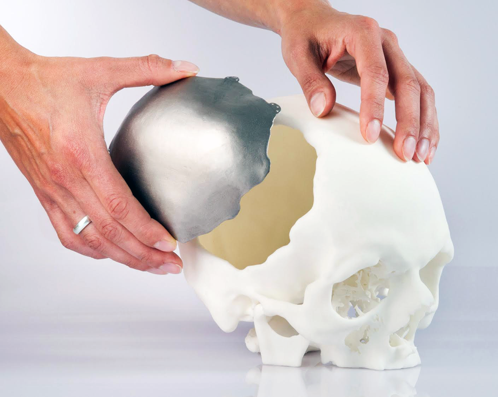 3d printing in medicine 3d printing is a relatively new, rapidly expanding method of manufacturing that found numerous applications in healthcare, automotive, aerospace and defense industries and in many other areas.